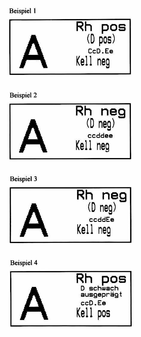 K Antigen /RH/MTA/index.html
