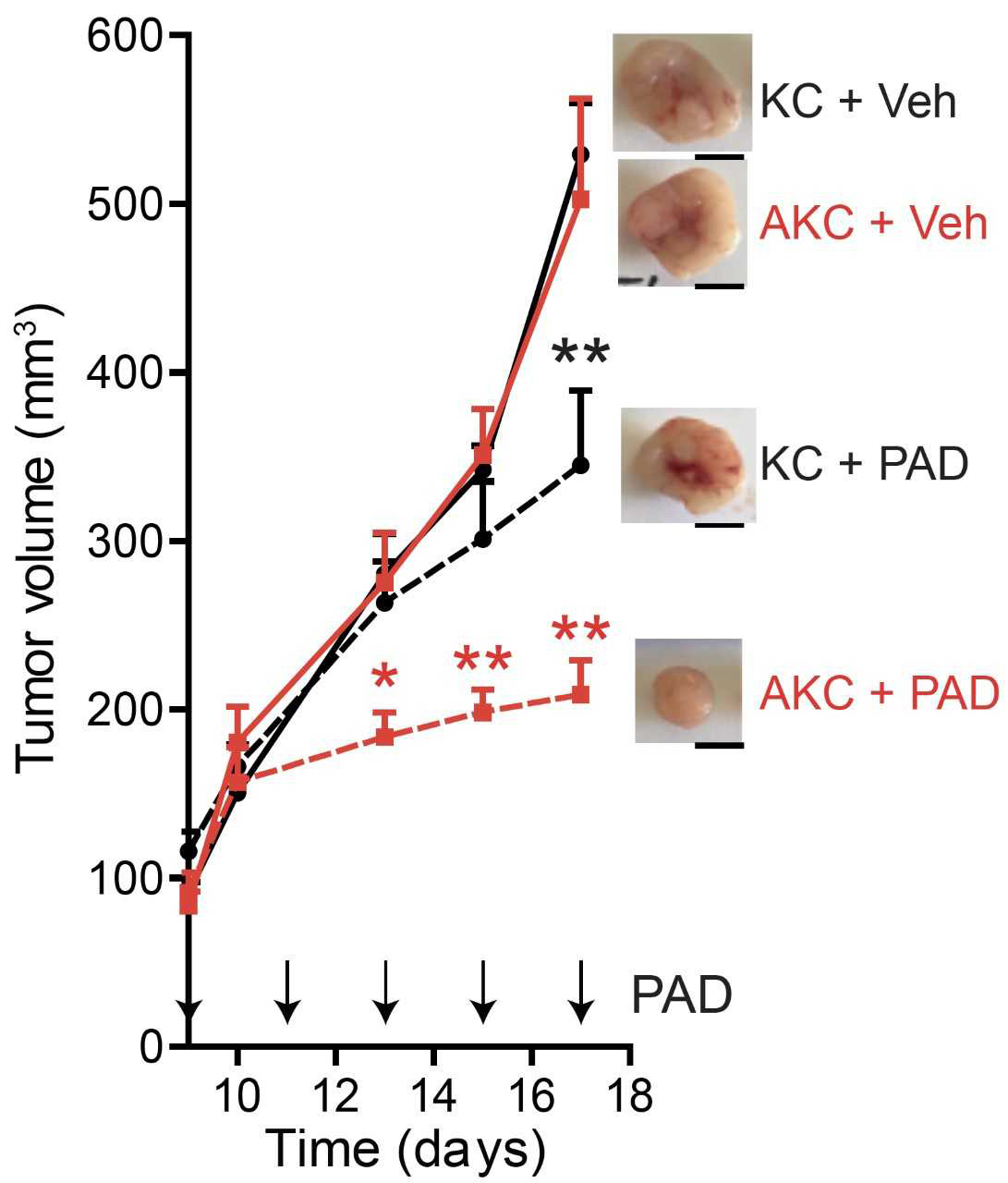 In the mouse model, the tumours with additional ATM loss (AKC) react significantly better to the therapy combination with PARP-, ATR- and DNA-PK inhibitors (PAD) than the generally used controls with simple KRAS mutation (KC)