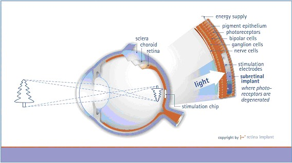 Figure 1 - Eye cross-sectional area