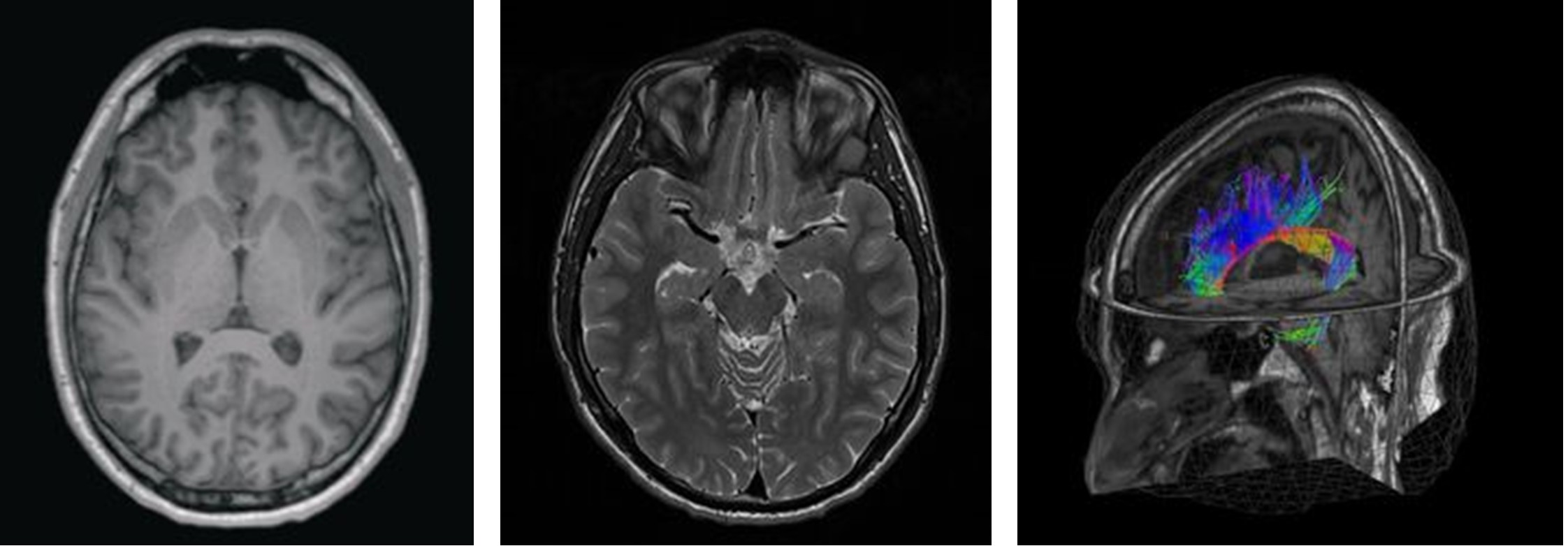 Neurologe hennef